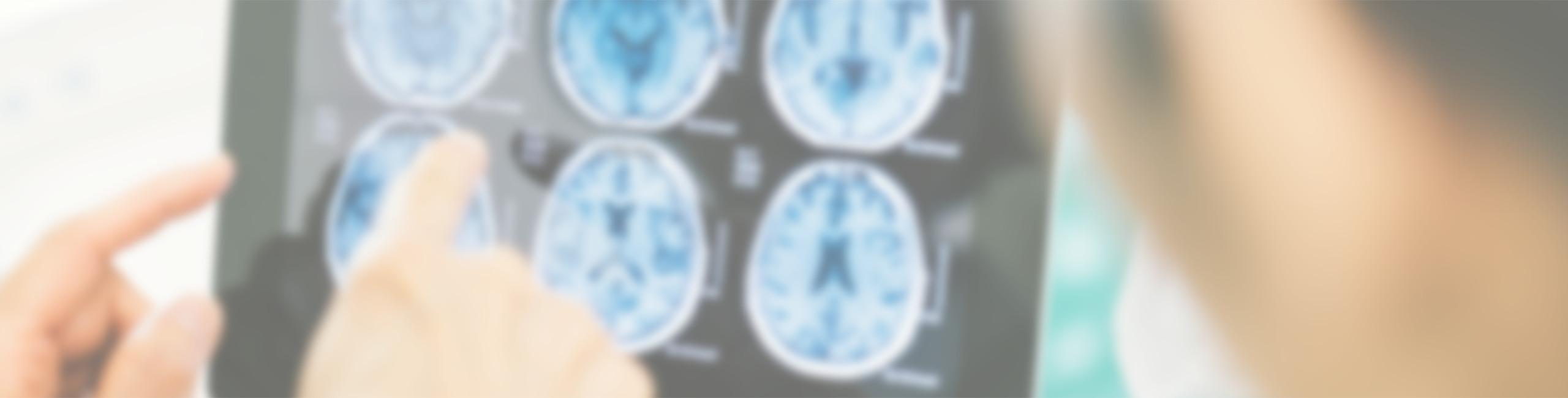 concussion & stroke